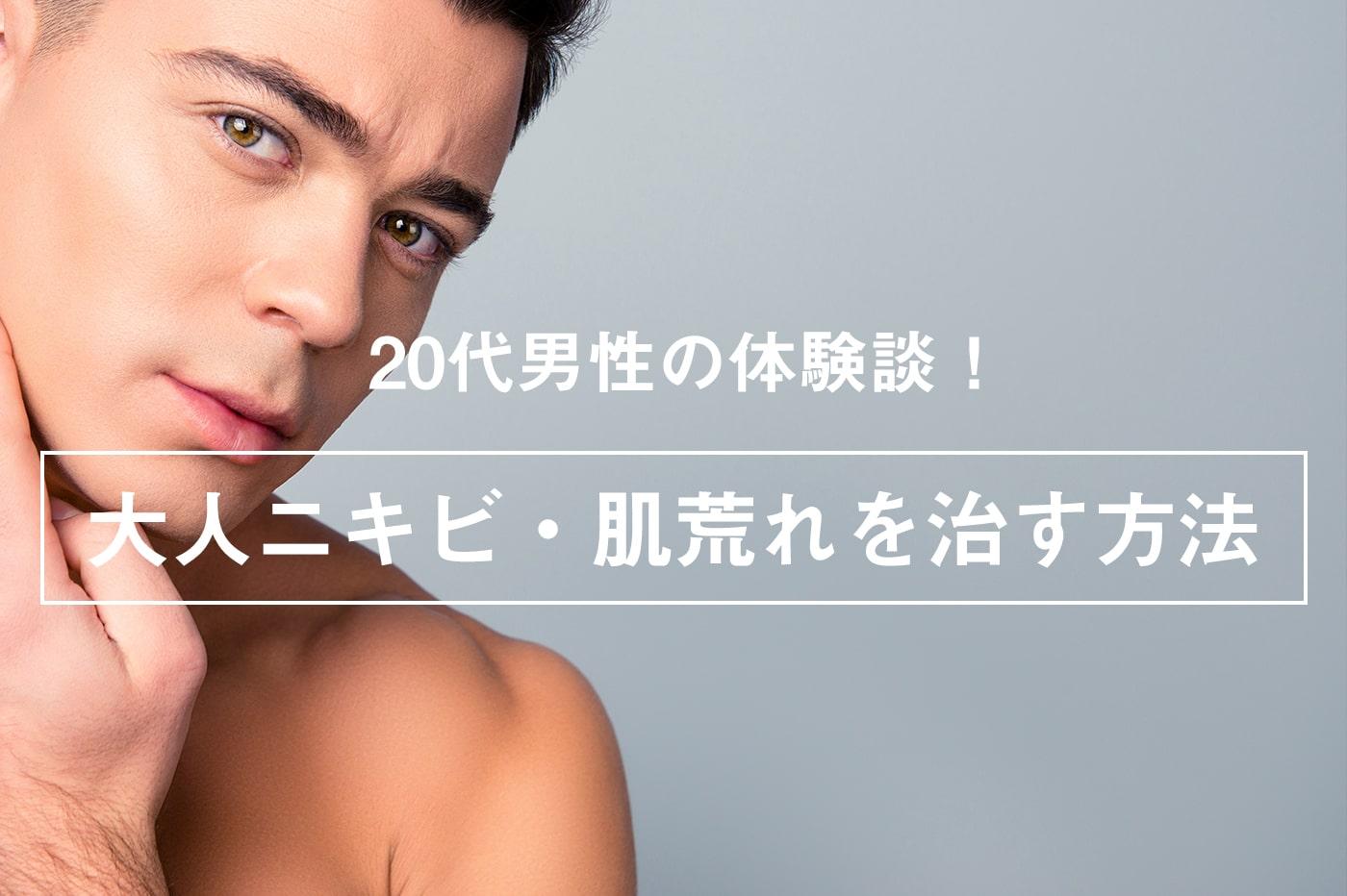 【体験談】20代男性の大人ニキビ・肌荒れを治す方法とは?効果ありの事例を紹介!